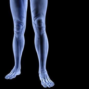 מחלת עורקים היקפית ברגליים - גורמים ותסמינים