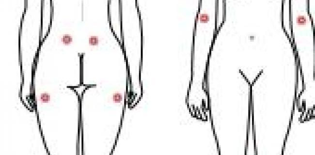 דאבת השרירים: פיברומיאלגיה