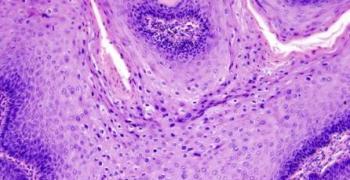 קונדילומה - טיפול בקונדילומה ותיאור