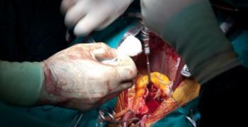 ניתוח להרזיה - סיכונים ותופעות לוואי